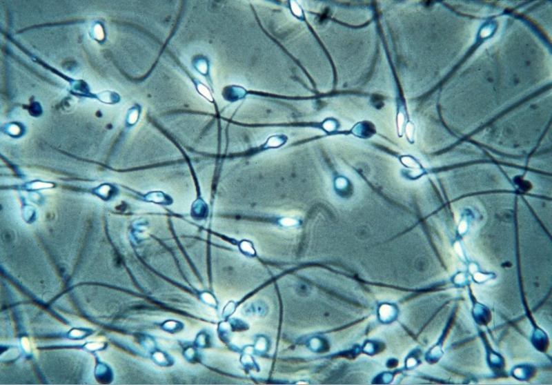 Picture Of Sperm Under A Microscope